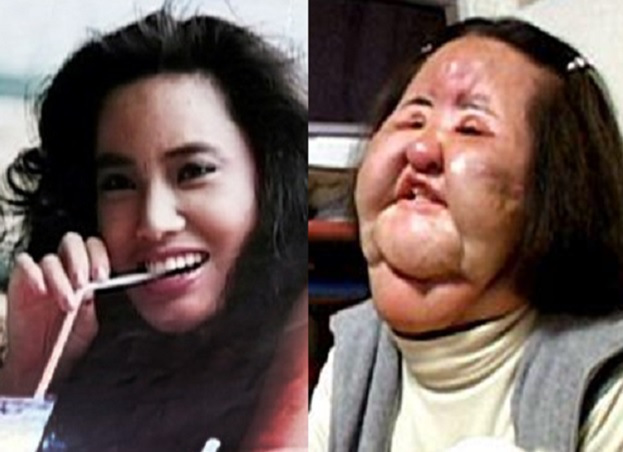 korean model surgery