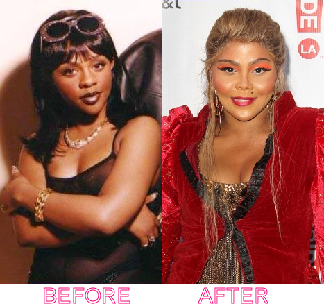 lil-kim-before-after-plastic-surgery